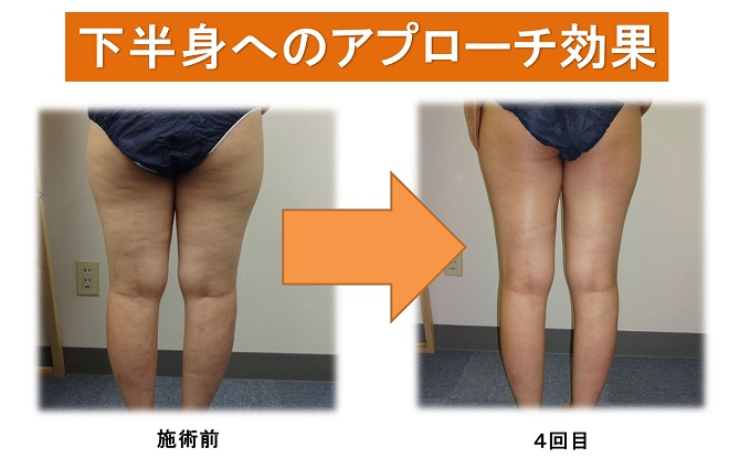 ashiyase01.jpg